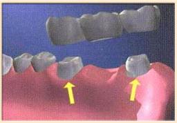 Мостовой вид имплантации