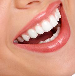 Отбеливание зубов результат