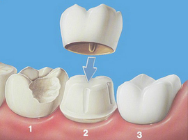 Принцип установки зубной коронки